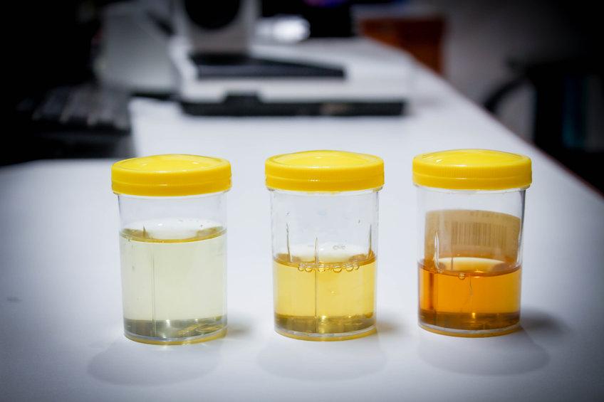 urine.jpg